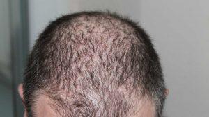 Best CBD Oil For Hair Loss
